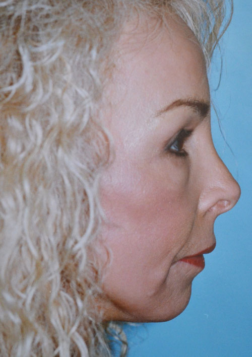 Laser Skin Resurfacing / Chemical Peel
